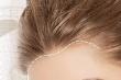 学生植发需要注意哪些问题?