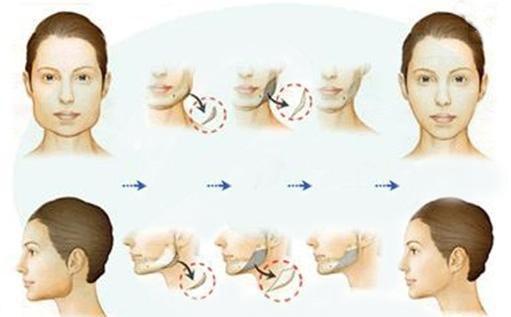 磨骨改脸型的流程中有去咬肌吗