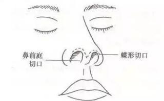知道怎样的鼻子更适合你吗