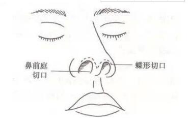 她因一个鼻子上热搜,好看的鼻子应该是这样的