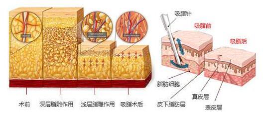 减肥并不容易,广州吸脂减肥可以轻松瘦身哦