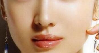 自体软骨隆鼻效果稳定后才能捏鼻子