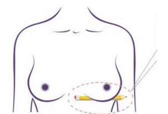 乳房下垂矫正手术恢复时间因人而异