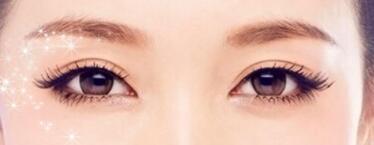 眼皮的脂肪过厚可以抽脂做双眼皮