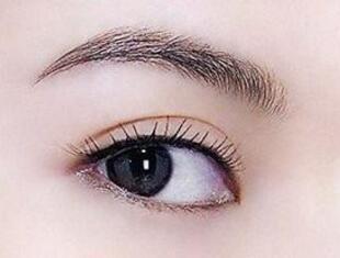 做埋线双眼皮手术需要一个月左右的时间完全恢复