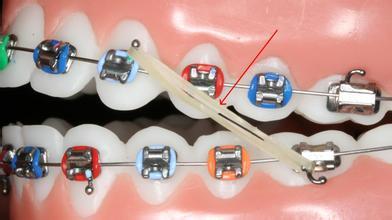 牙齿矫正之后真的会改变脸型吗