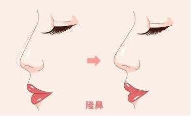 隆鼻让女孩们实力颜值兼备